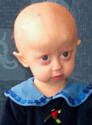 Progeria Syndrome - Cardiac Dysfunction